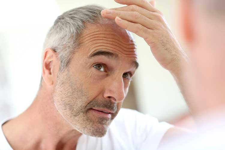 older man hair loss